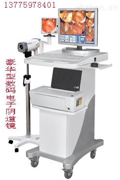 厂家生产)高清晰电子阴道镜价格